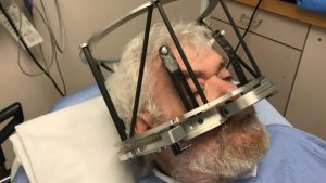 Acclaimed scientist gets brain surgery for alcohol addiction